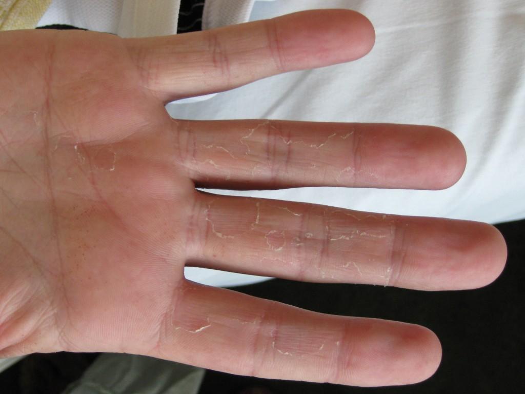 acrovesiculeus eczeem huidziekten