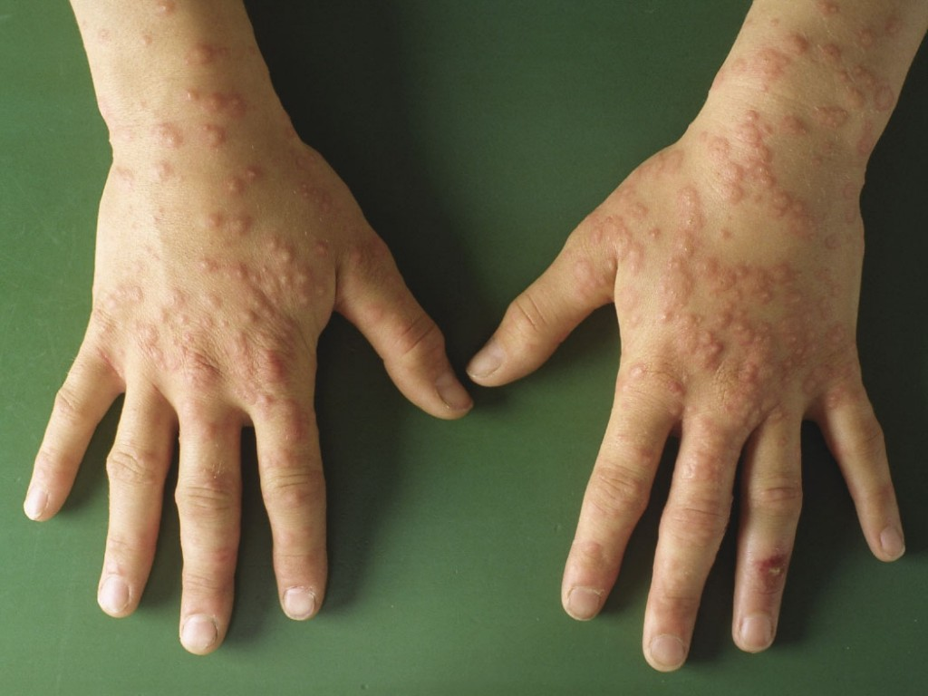 bacteriele infectie hand