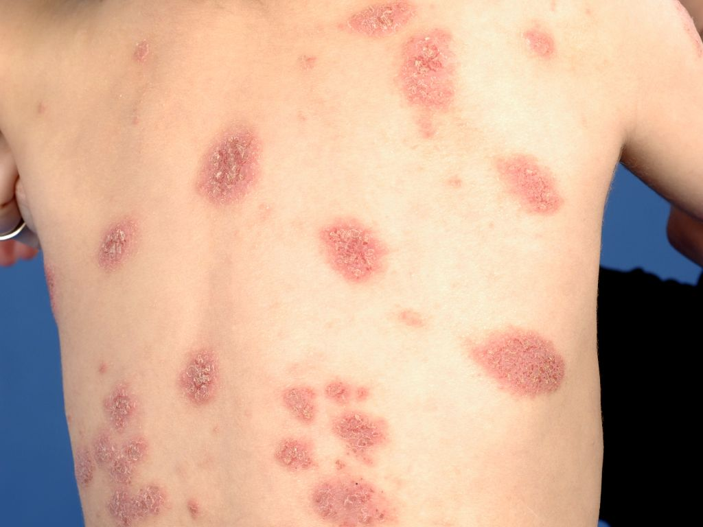 Impetigo - KidsHealth