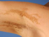 Epidermal nevus syndrome
