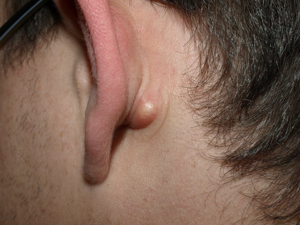 Pilar Cyst - Pictures, Removal, Treatment, Prevention