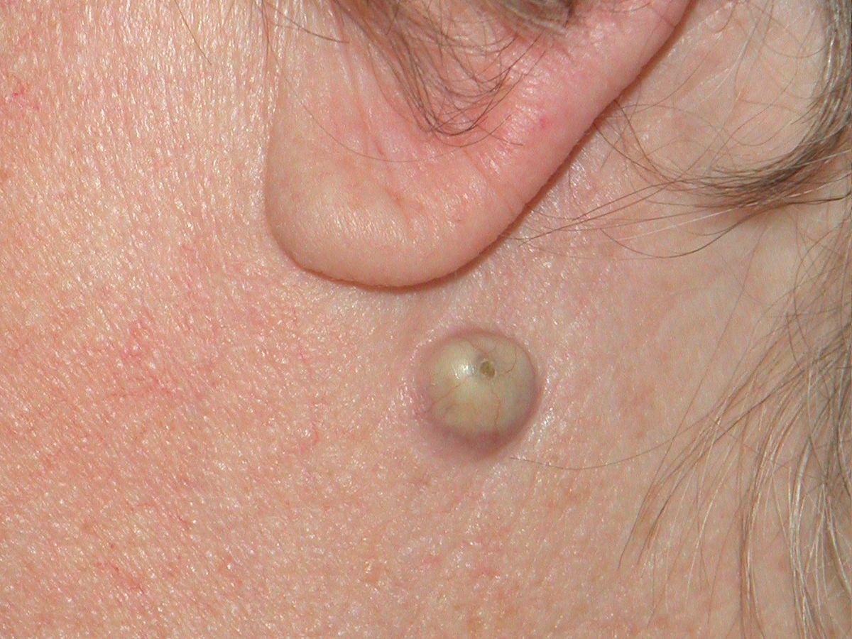 piercing litteken verwijderen