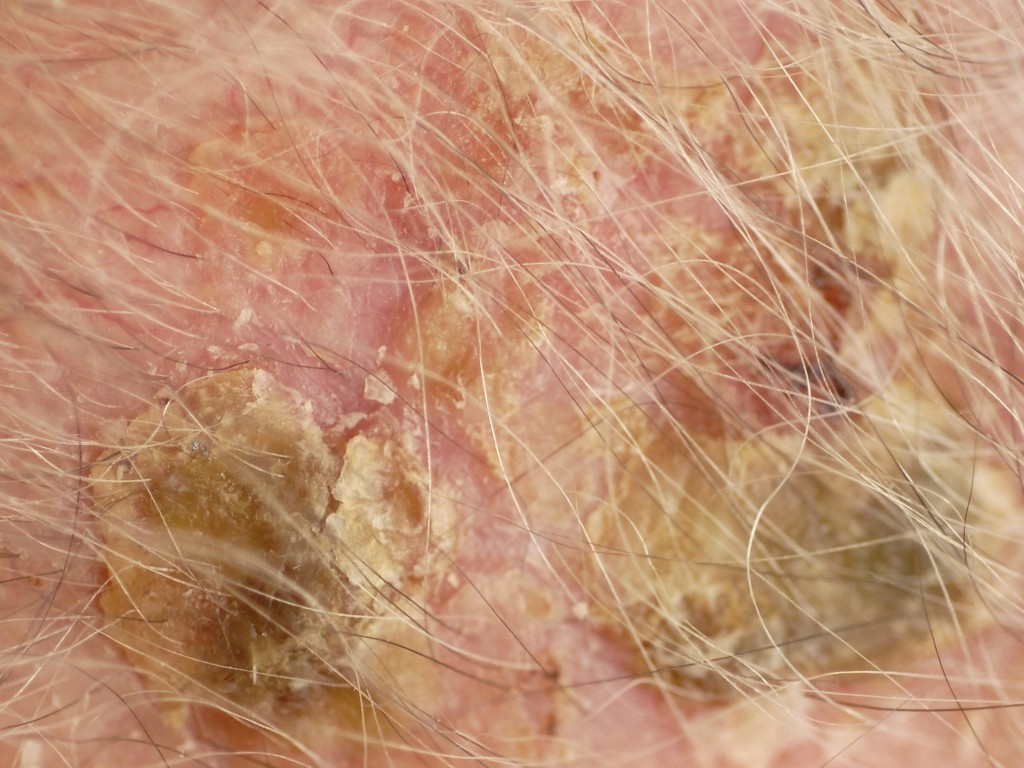Transient Neonatal Pustular Melanosis Picture Image on ...