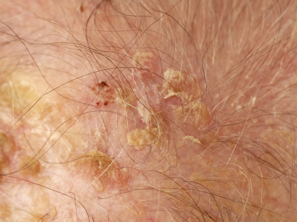 Scalp Psoriasis Information | National Psoriasis Foundation