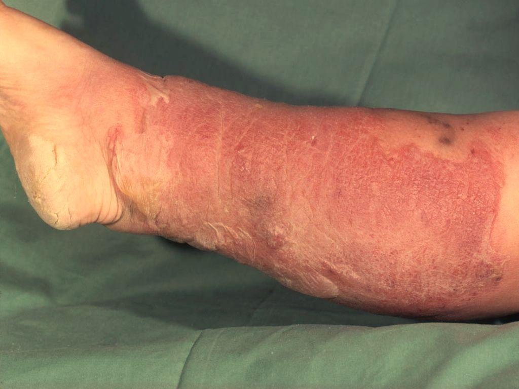 trombose pijn in voet