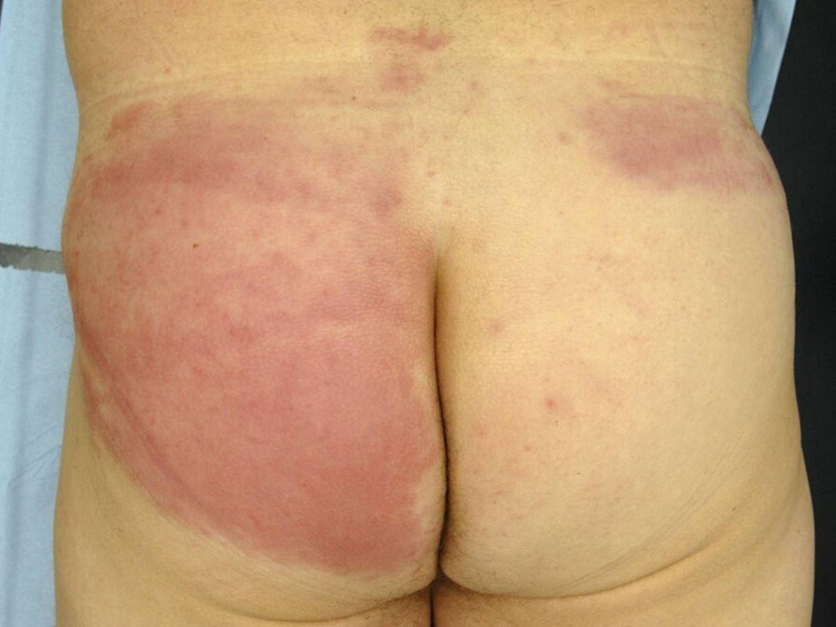 cellulitis symptomen