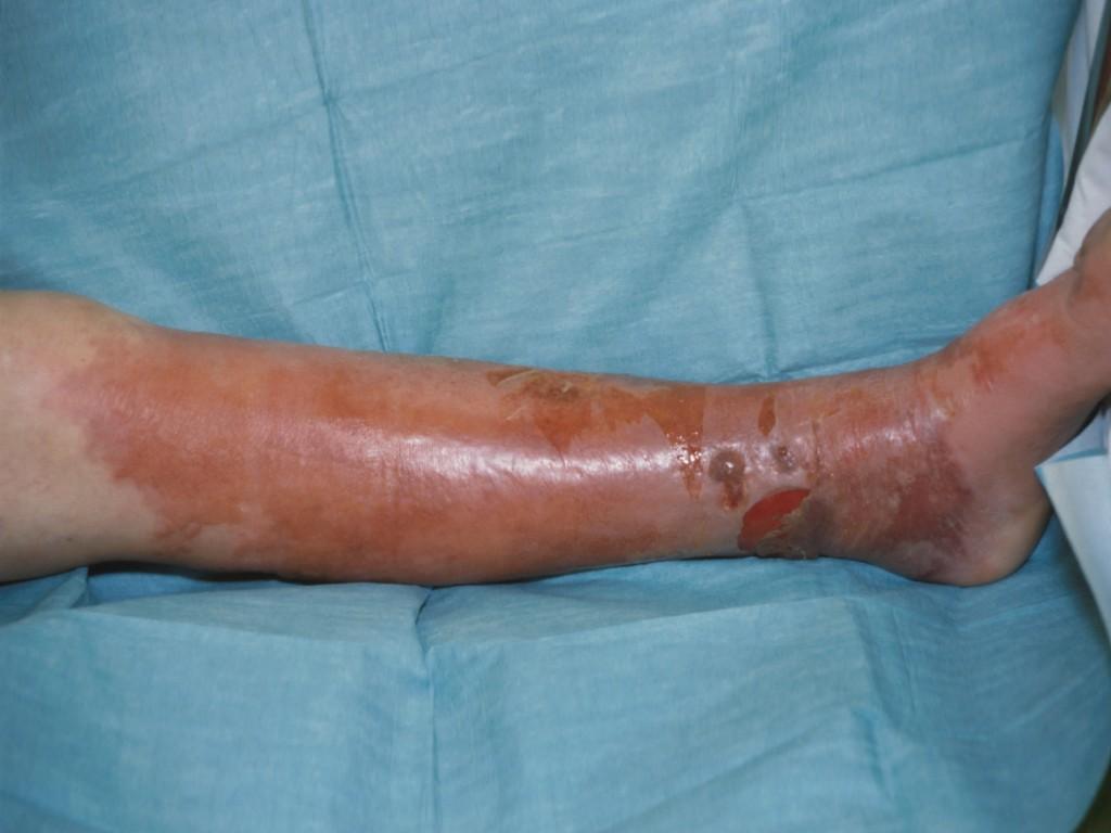 cellulitis infectie