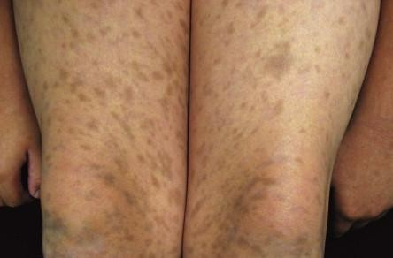 Erythema dyschromicum perstans - RightDiagnosis.com