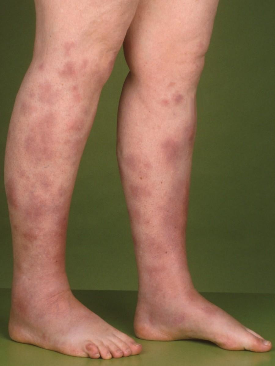 Aandoeningen: erythema nodosum | Mens en Gezondheid: Ziekten