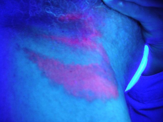 erythrasma-woods lamp, corynebacterium: coral red | Dermatology ...