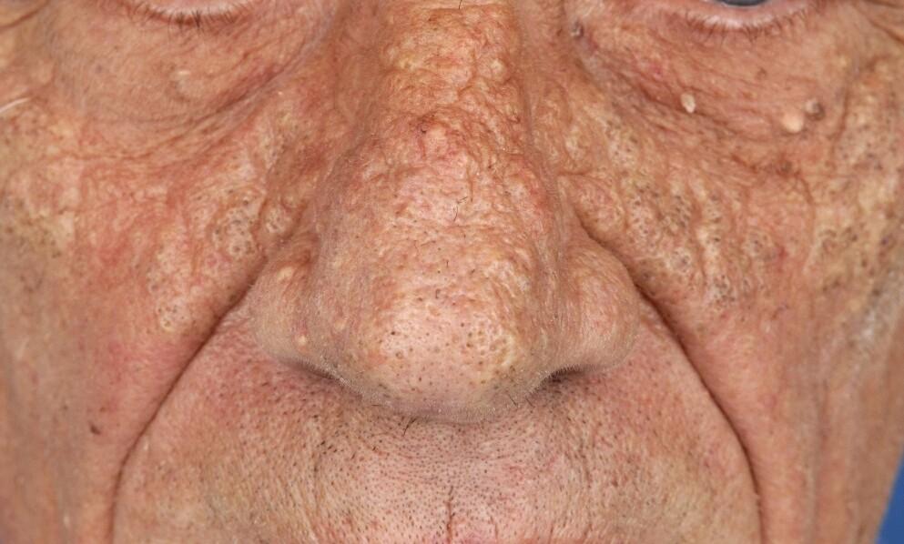 Zakboek Dermatologie - Alfabetische indeling - F