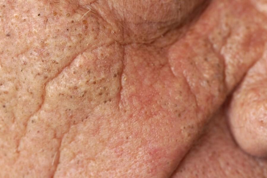 Favre-Racouchot syndroom (elastosis cutanea nodularis) is