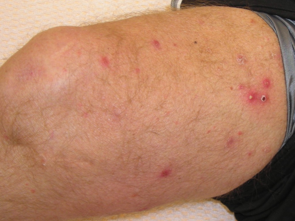 folliculitis Picture Image on MedicineNet.com