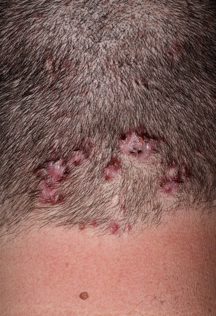treating folliculitis