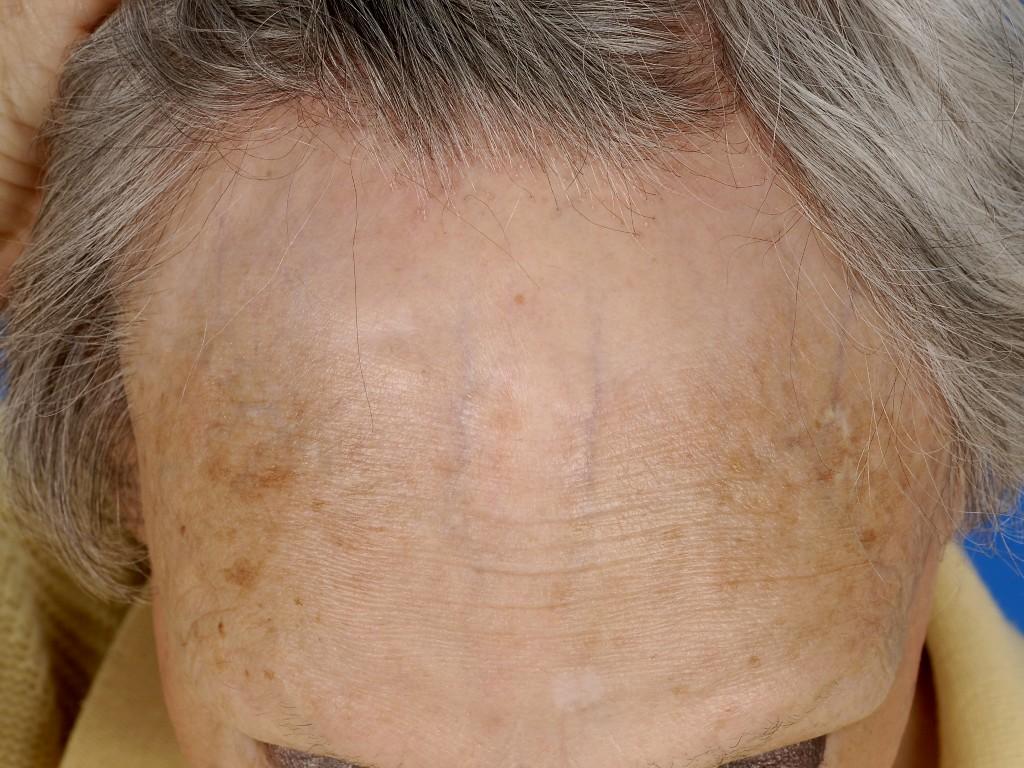 alopecia erfelijk