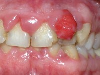 Gingiva hyperplasie