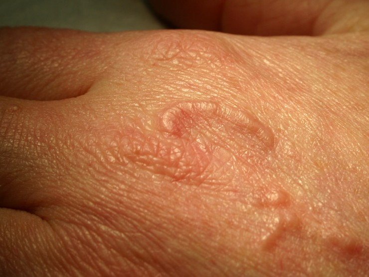 Pin On Scalp Causes Symptoms Treatment Ringworm Pictures on Pinterest