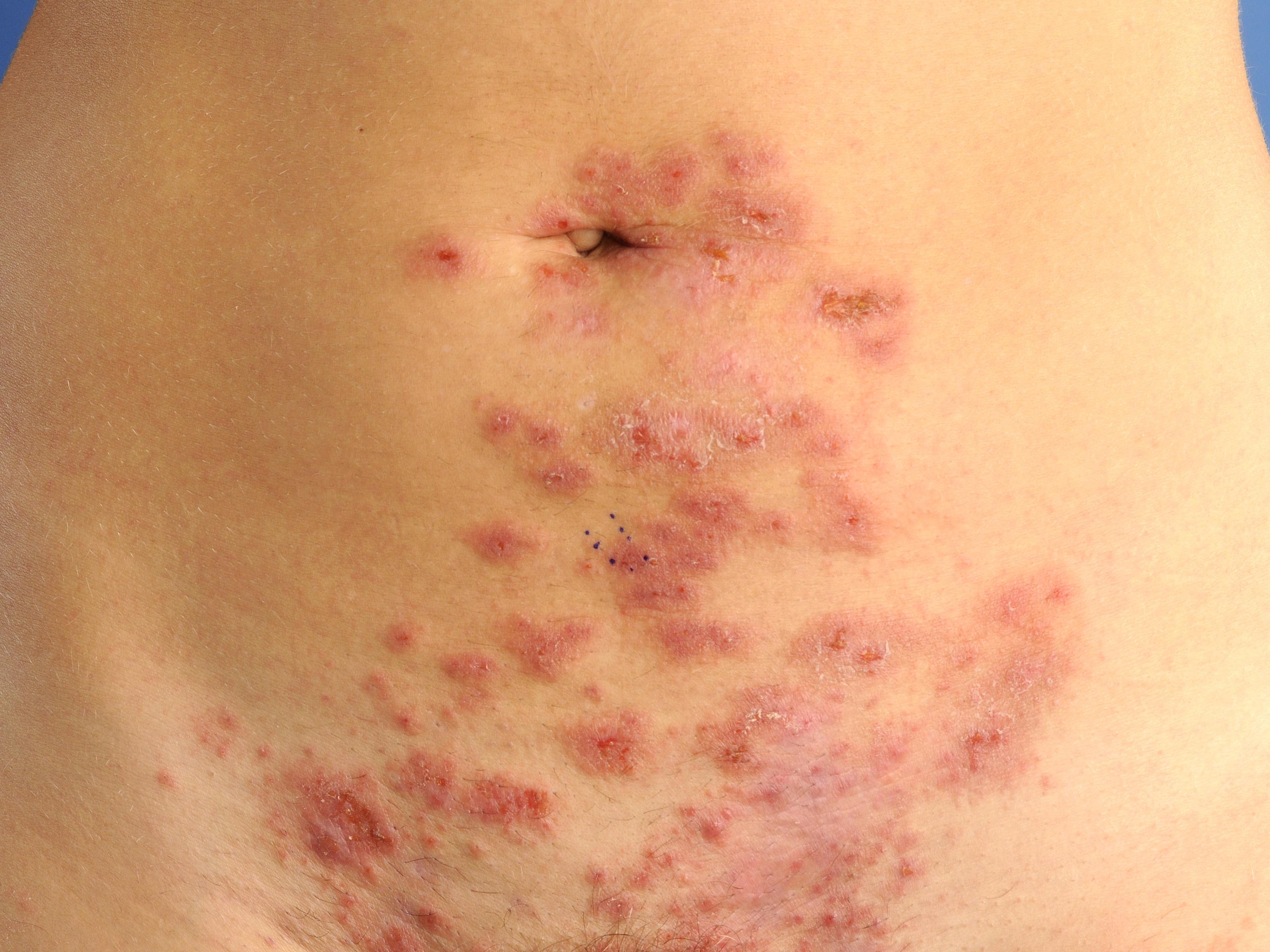 herpes gestationis