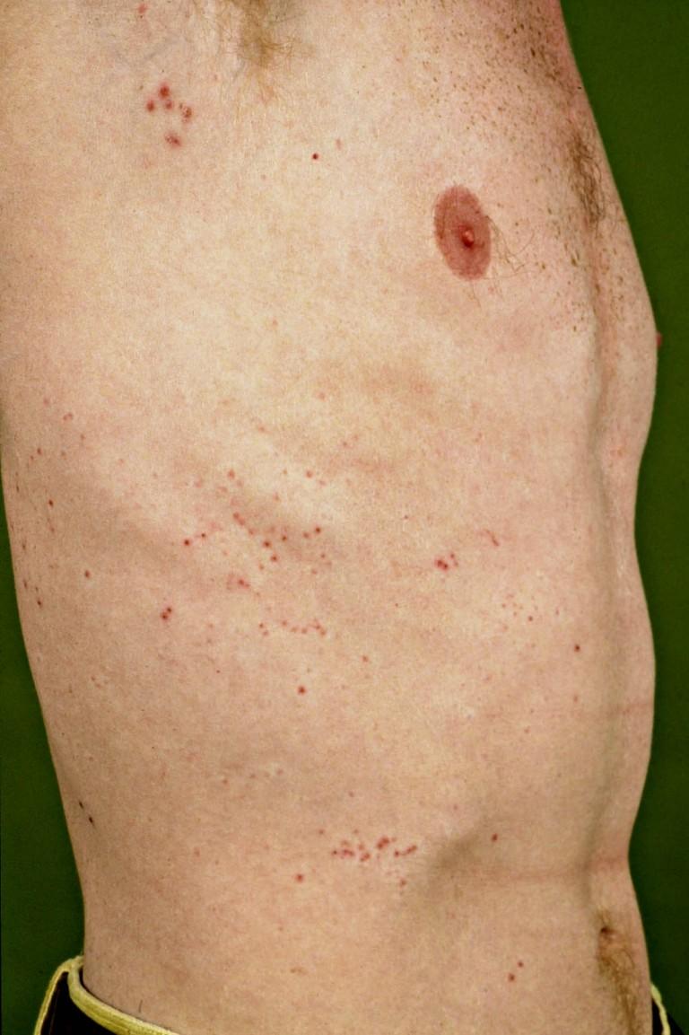 herpes labialis huidziekten