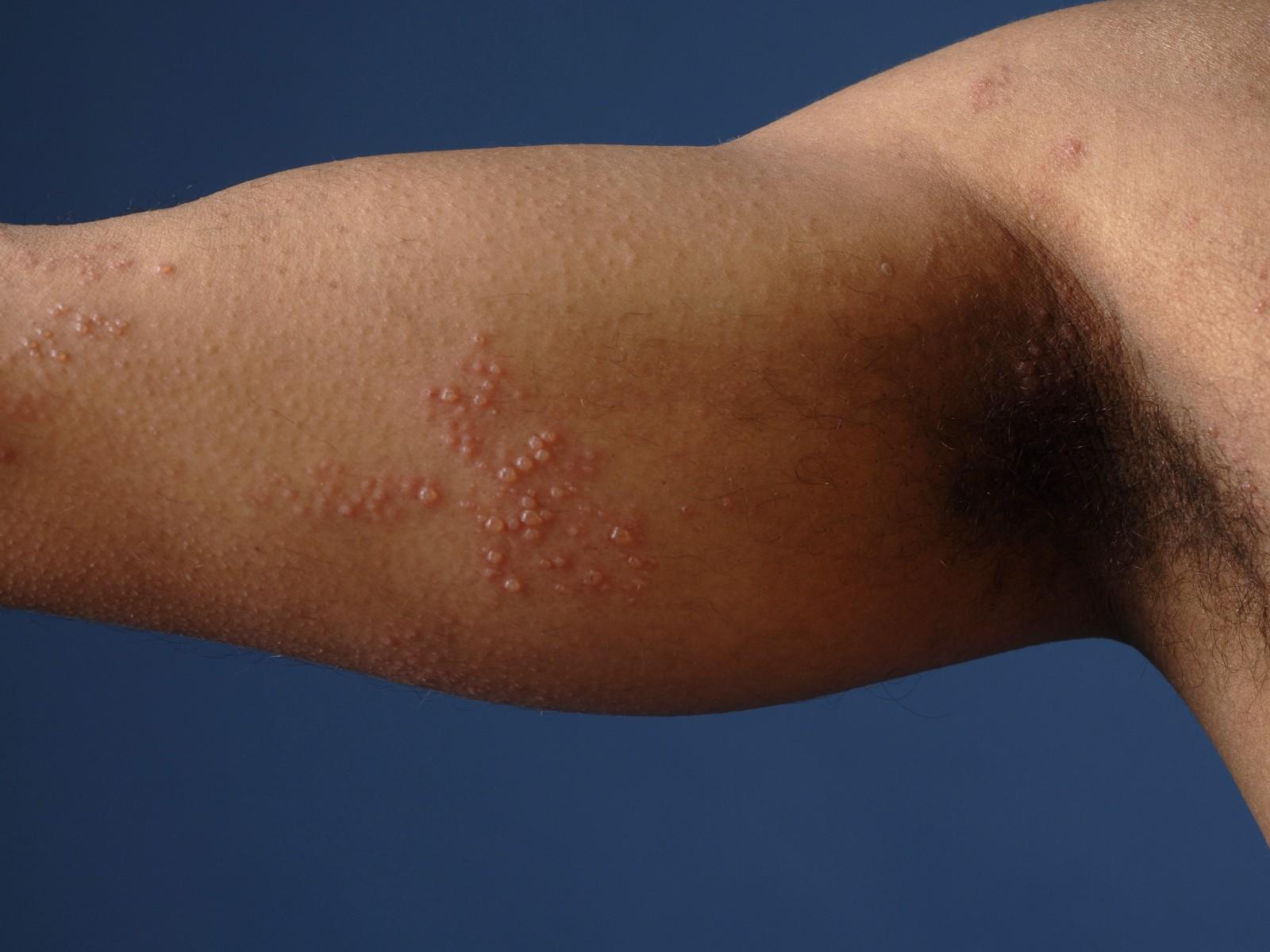 Herpes zoster huidziekten