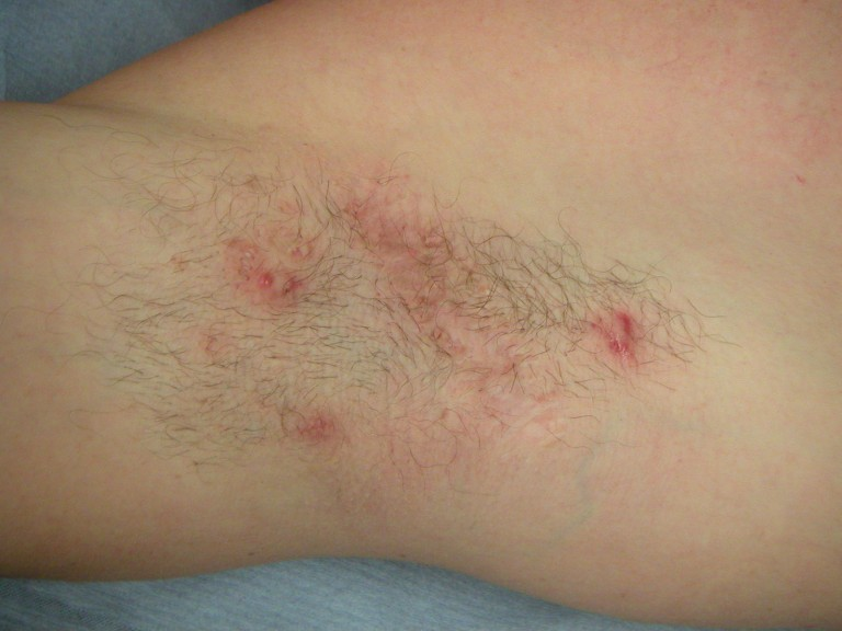 hidradenitis suppurativa pictures