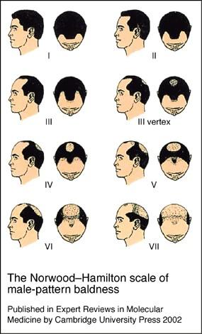 alopecia androgenetica huidziekten