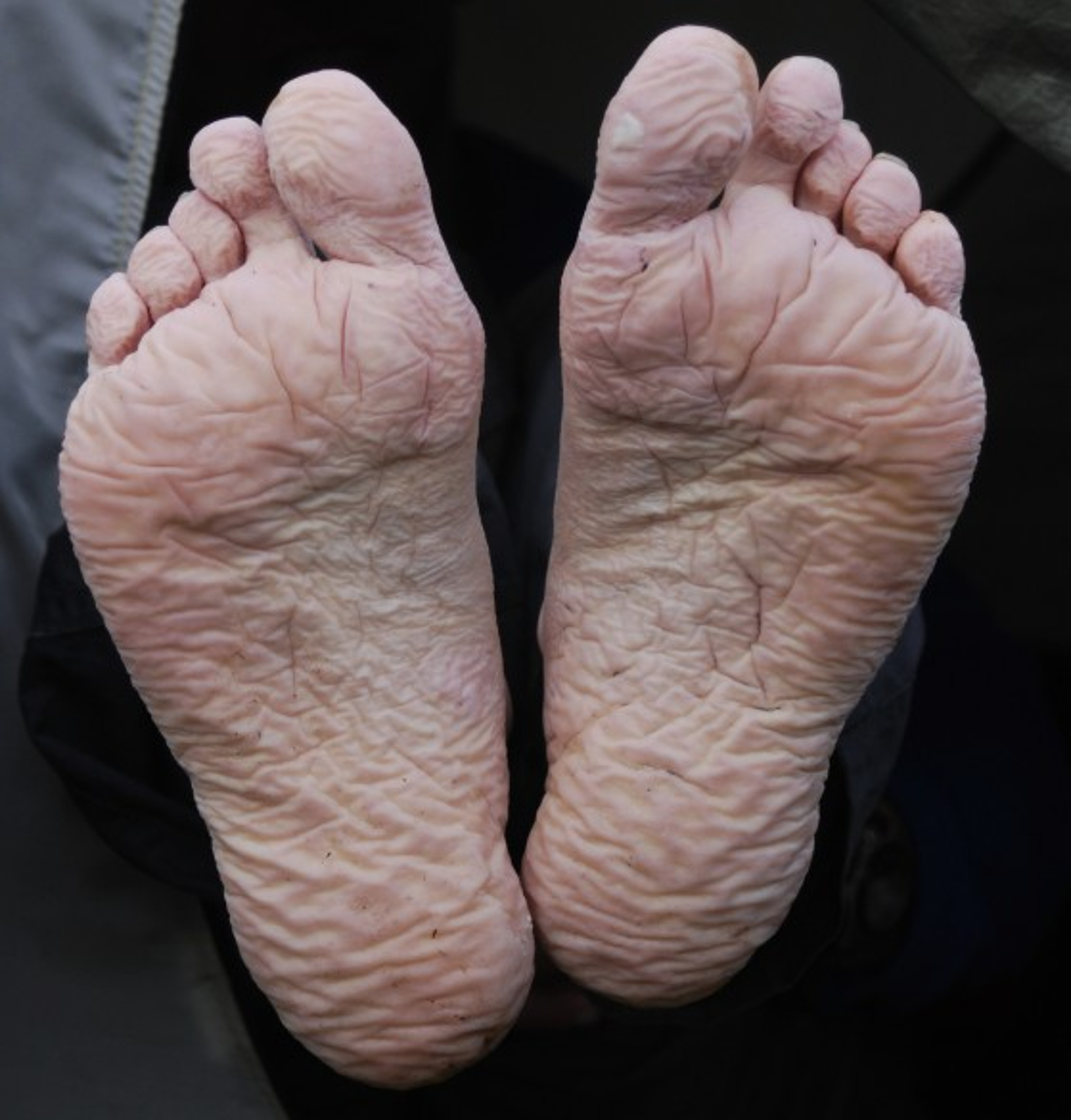 behandeling smetten van de huid