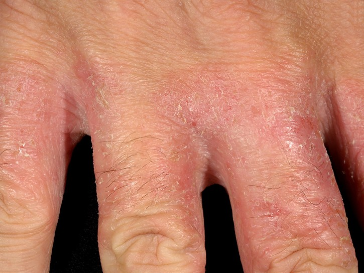irritant contact dermatitis #10