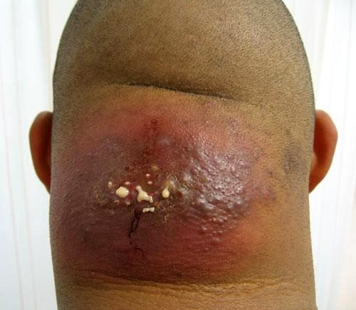 hidradenitis suppurativa pictures #10