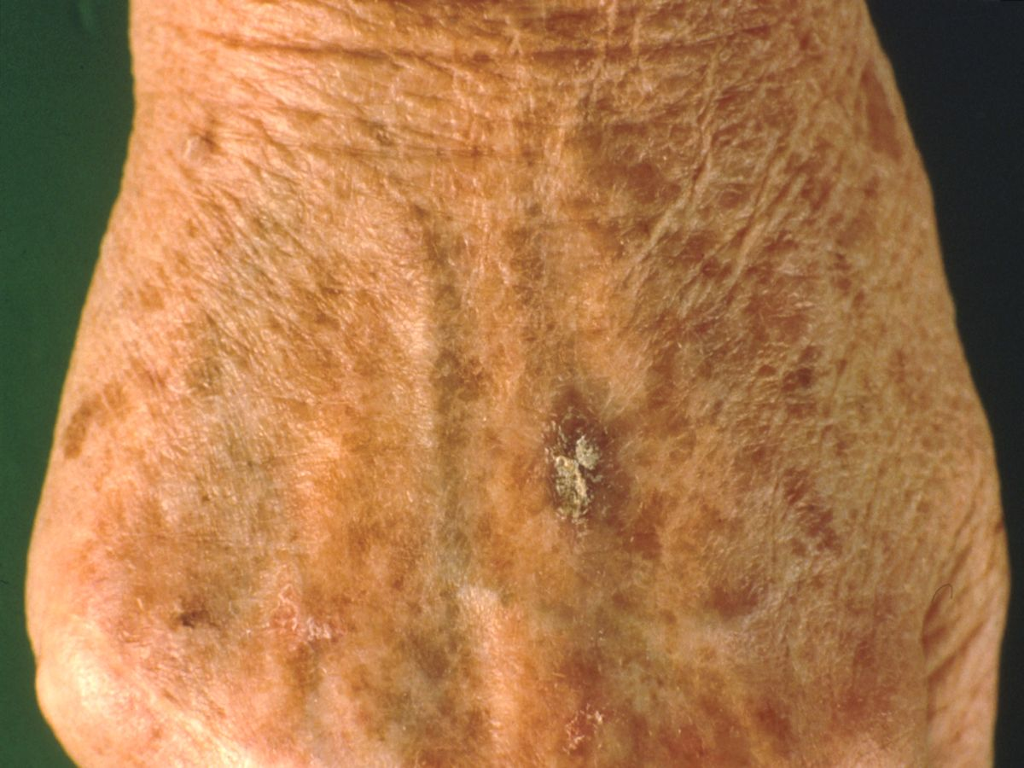 Solar Keratosis Natural Treatment