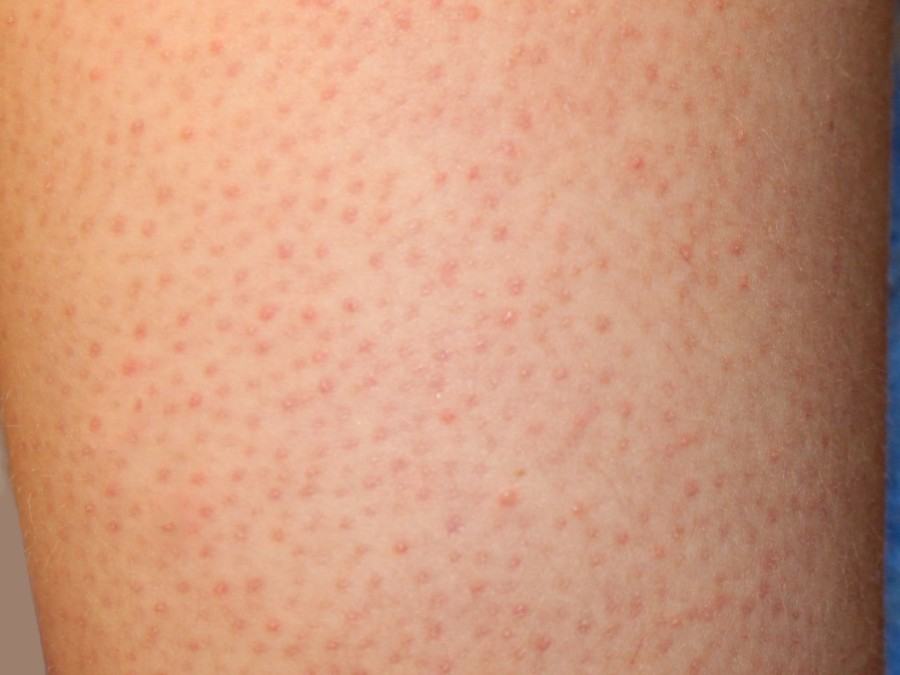 skin rash with fluid filled bumps