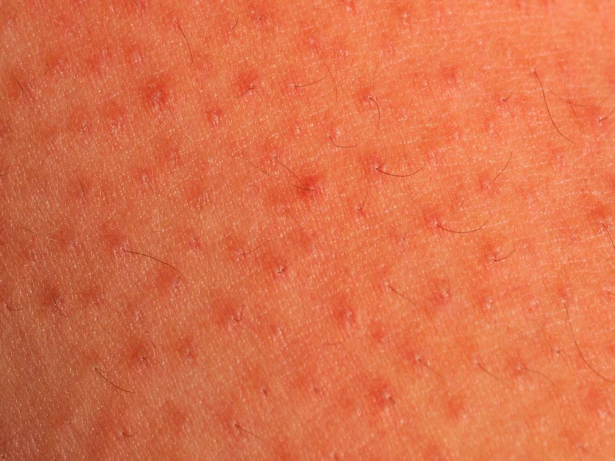 Keratosis pilaris : MedlinePlus Medical Encyclopedia