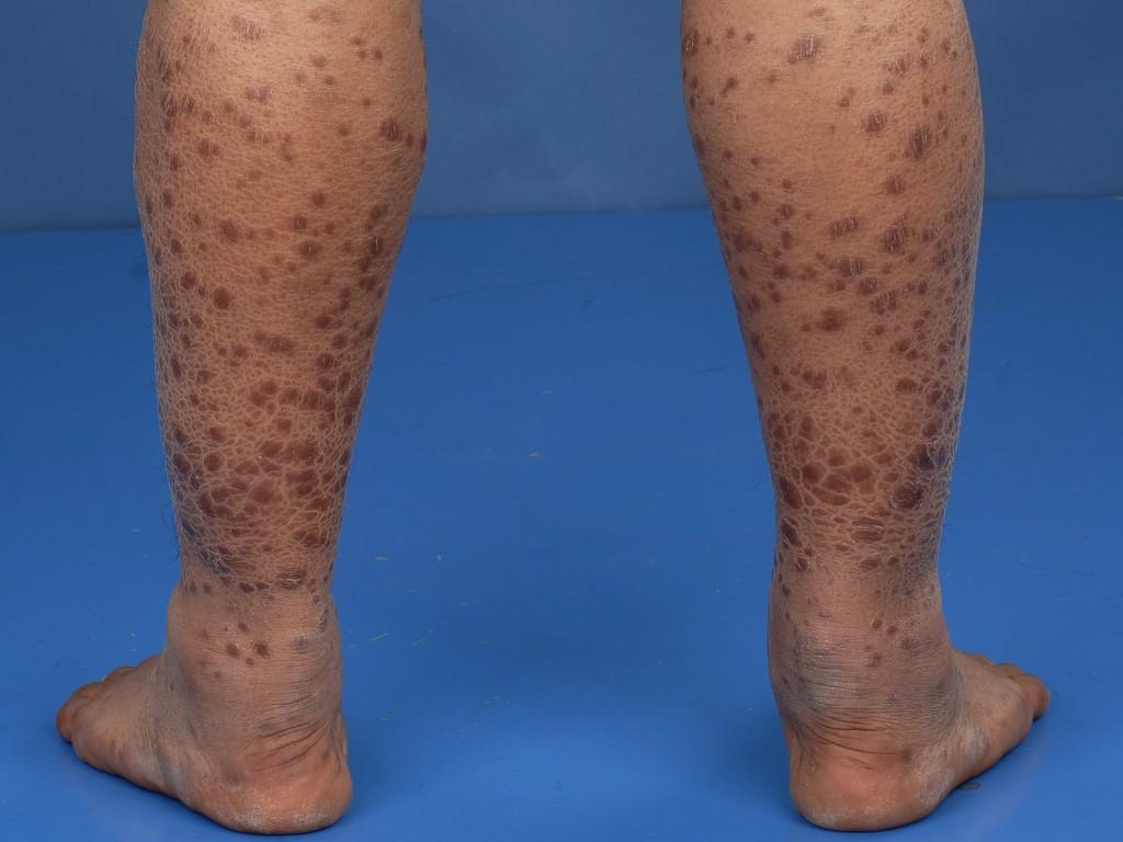 Lepra Leven Met Lepra Patientenfolder