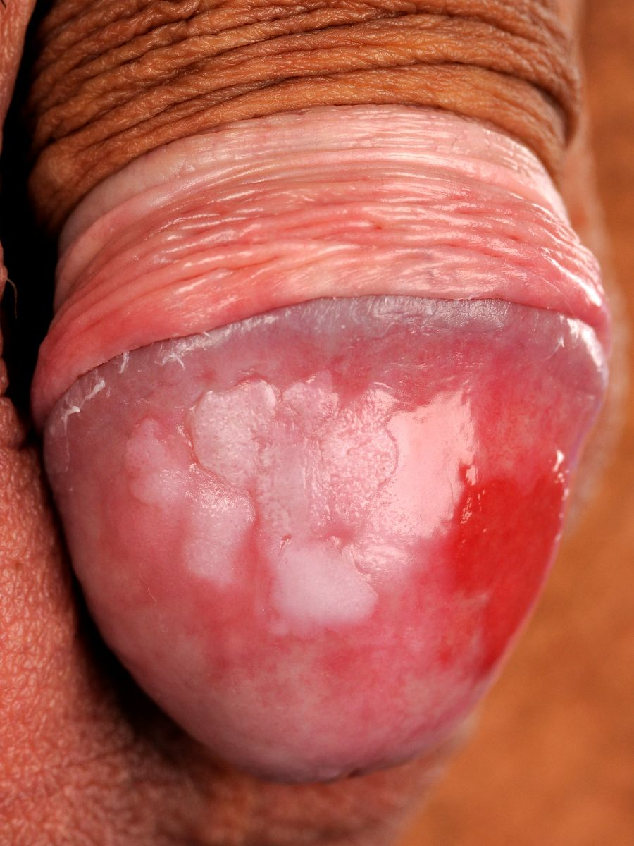 Leukoplakia of penis