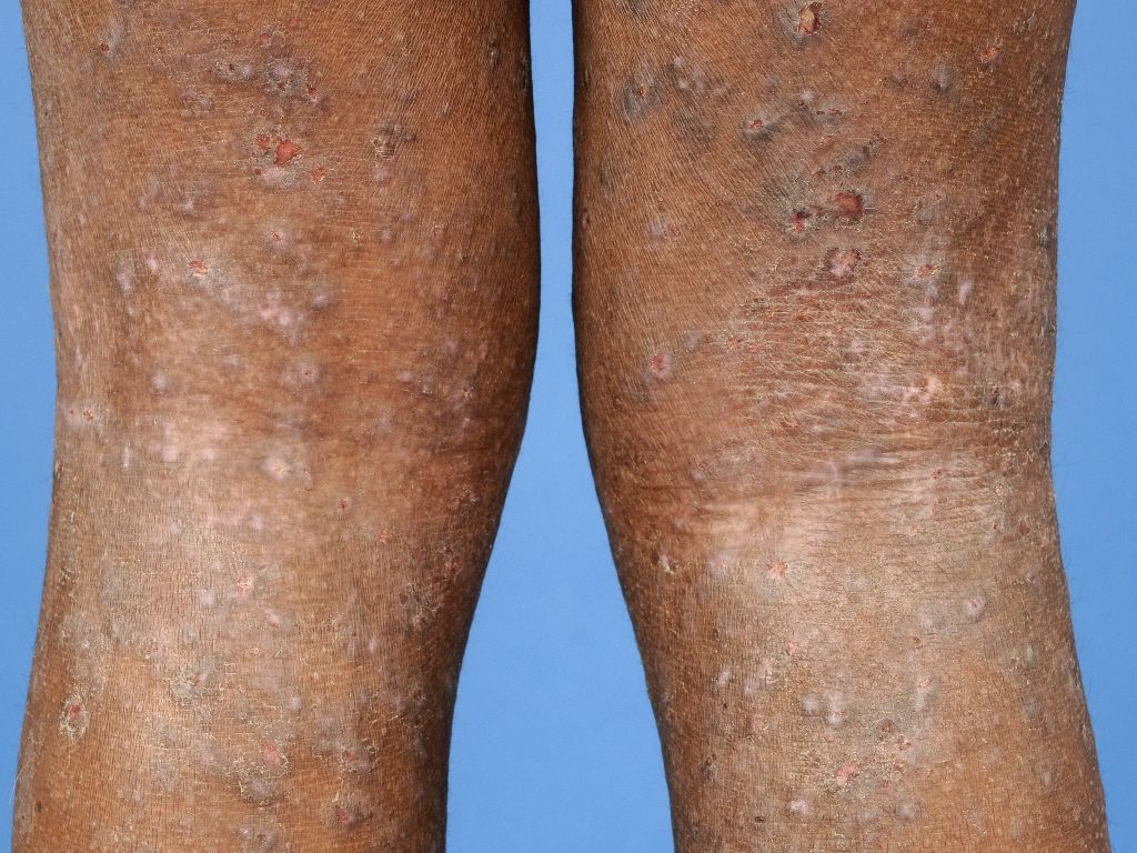 lichenificatie huid