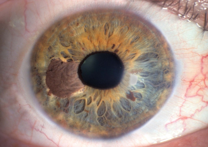 blauwe rand om de oog