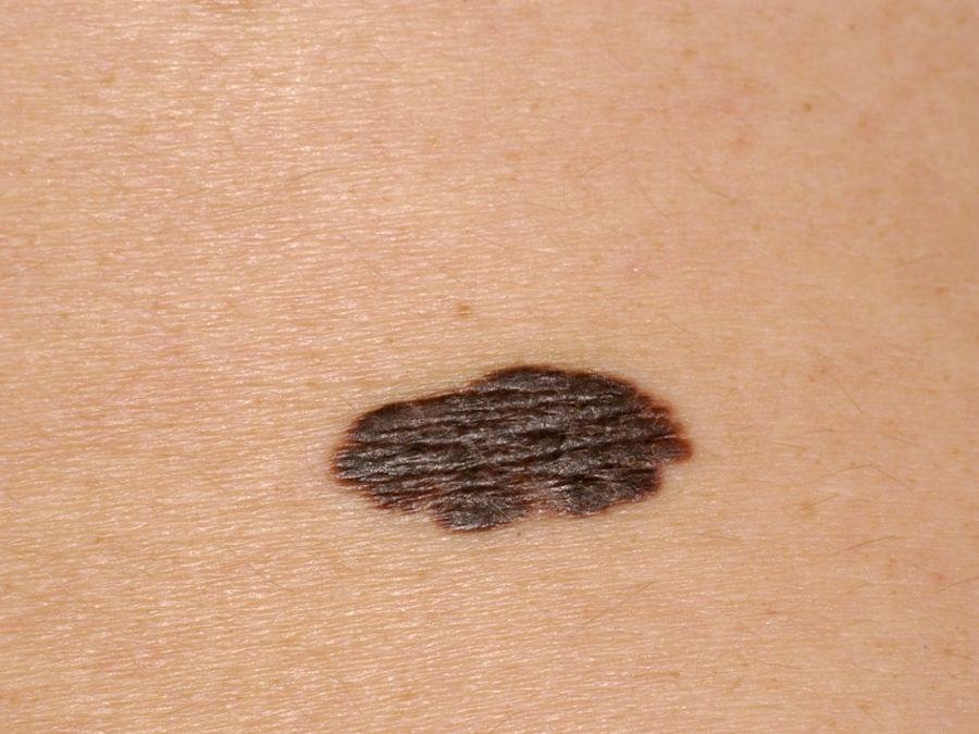 melanoom buik