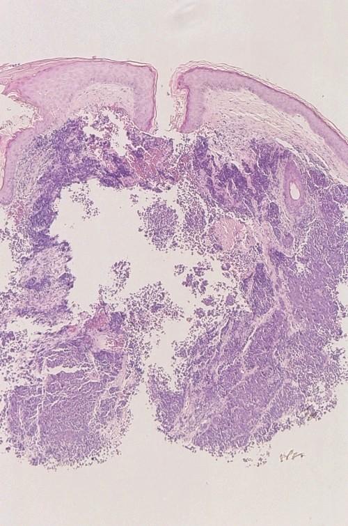 kleincellig carcinoom