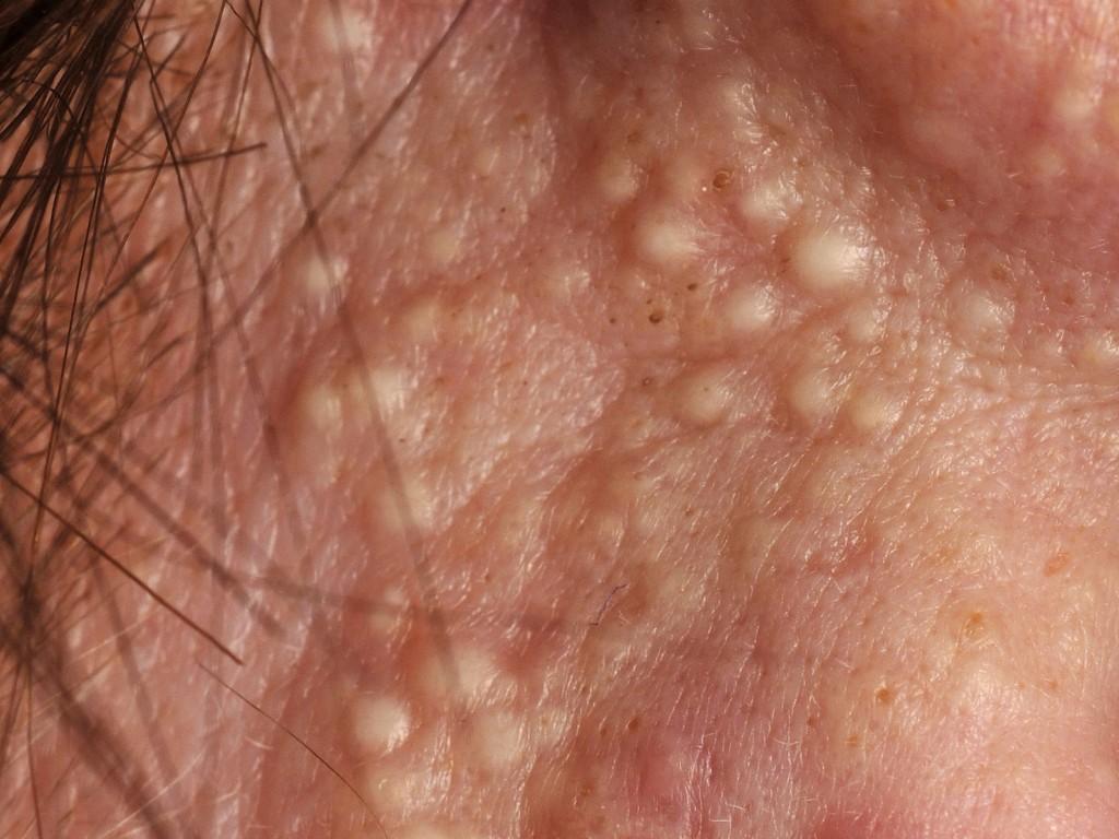 Generalised pustular psoriasis   DermNet New Zealand