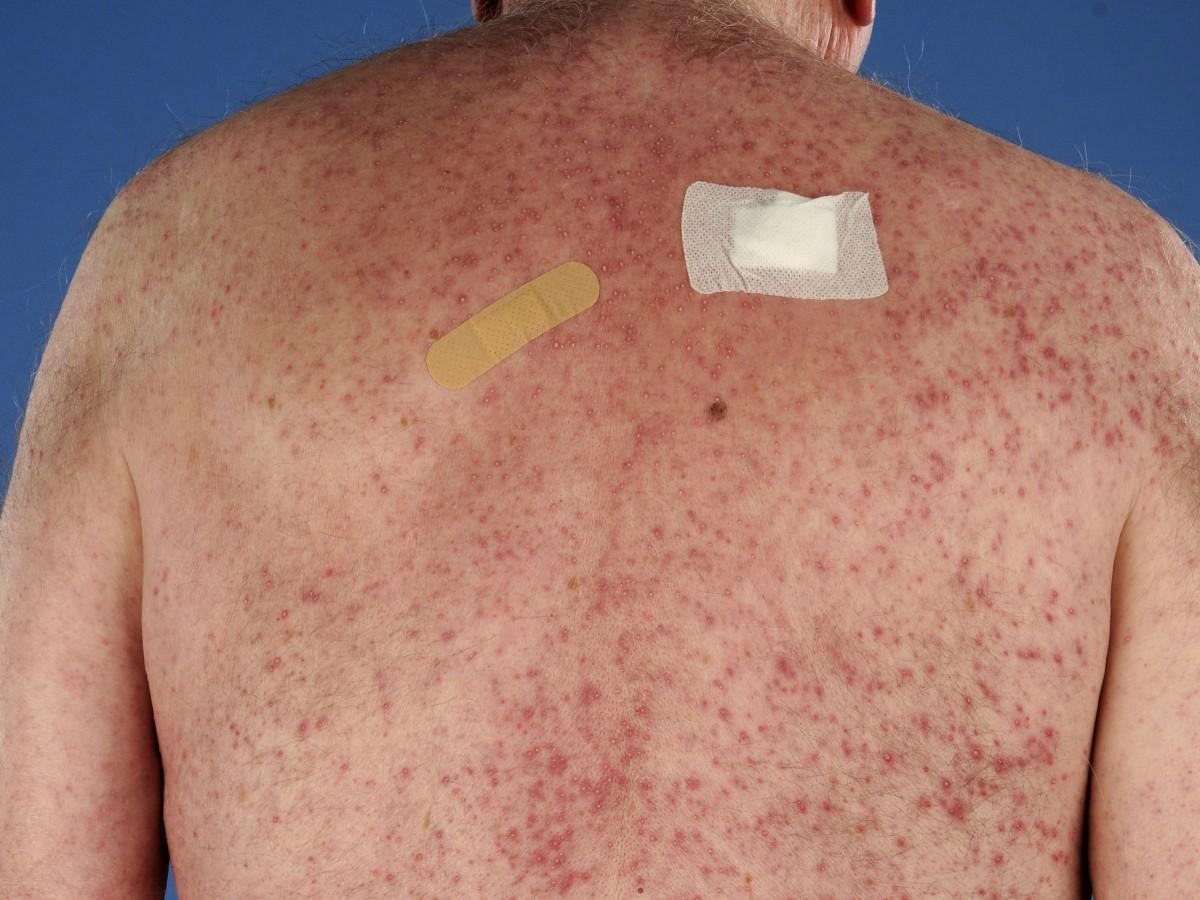 Skin Care and Rash Medications - Verywell