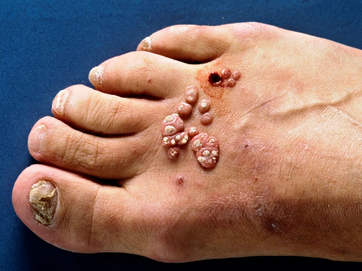 Mysterious Flesh-Eating Bacteria That Causes