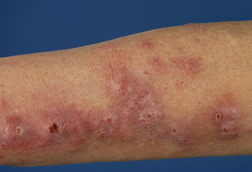 Mycobacterium Marinum Infection of the Skin: Background ...