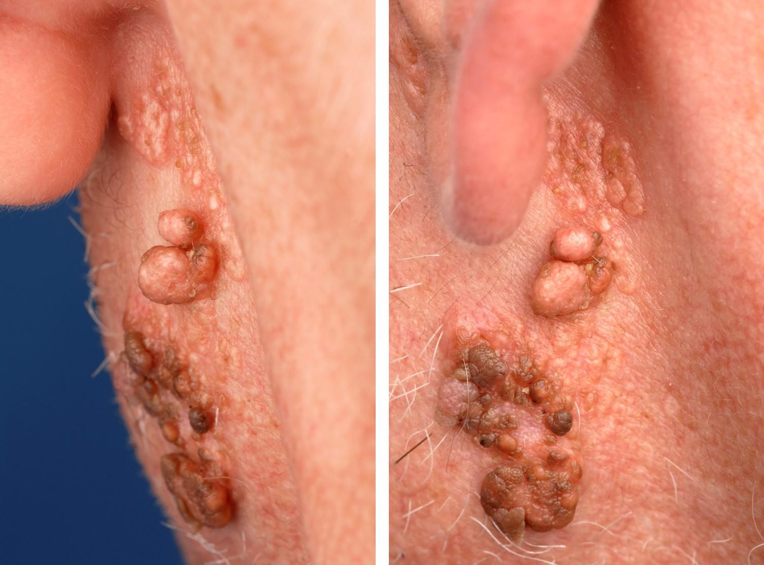 Aplasia Cutis Congenita - NORD (National Organization for ...