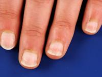 snel lange nagels krijgen