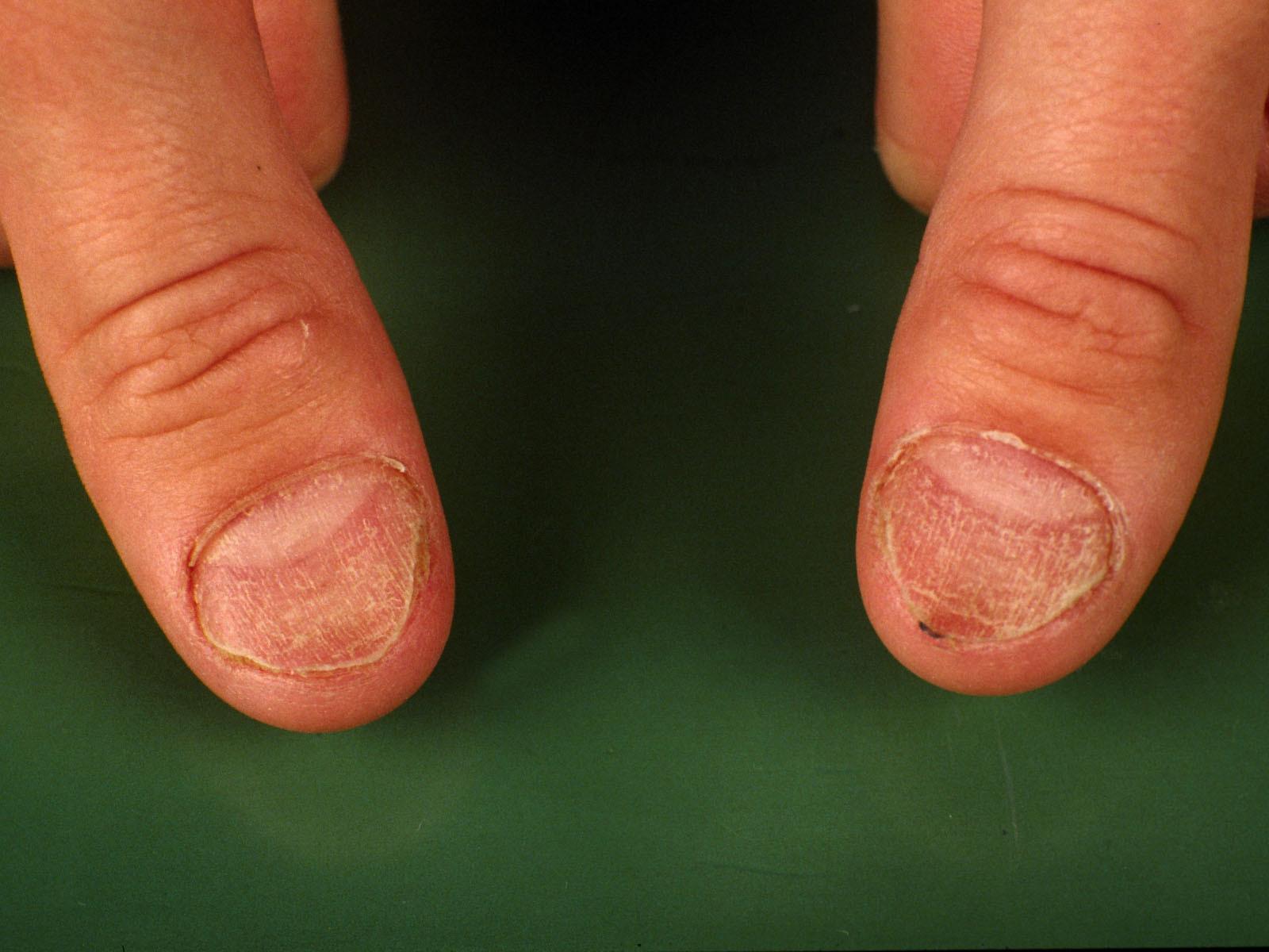 Koilonychia (spoon nails, lepeltjes nagels)