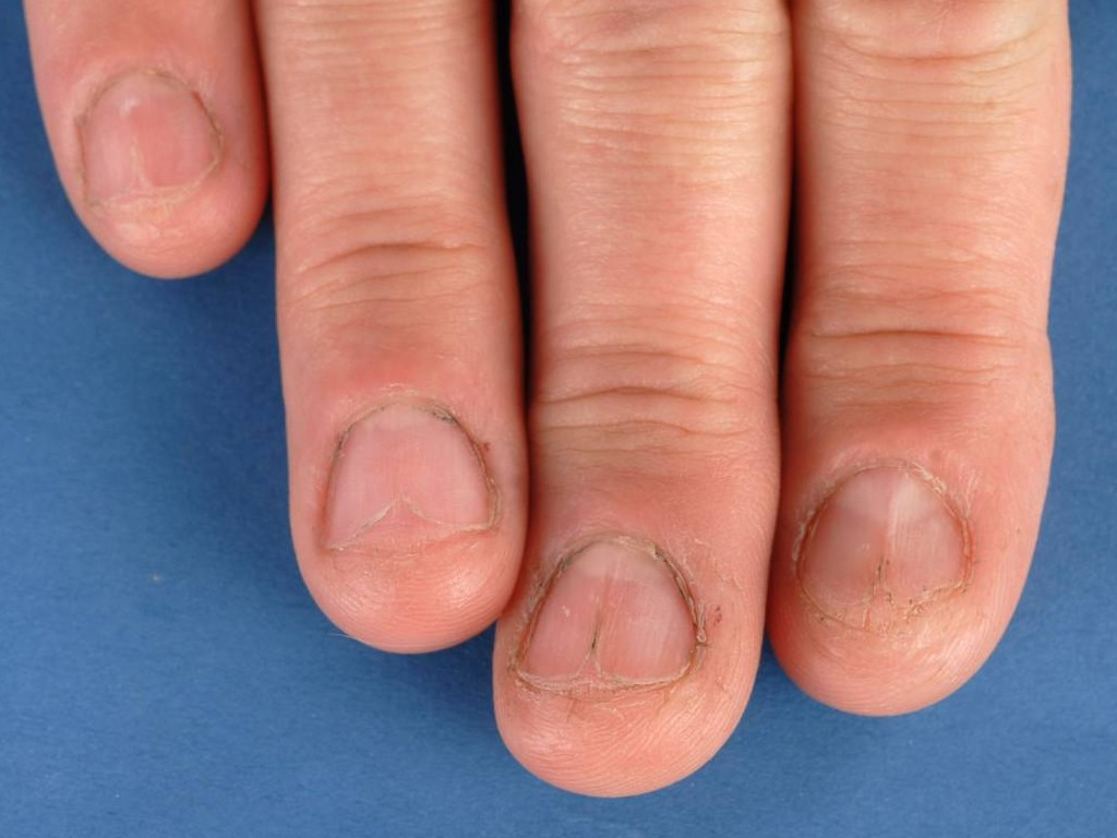 Nagelafwijkingen bij lichen planus