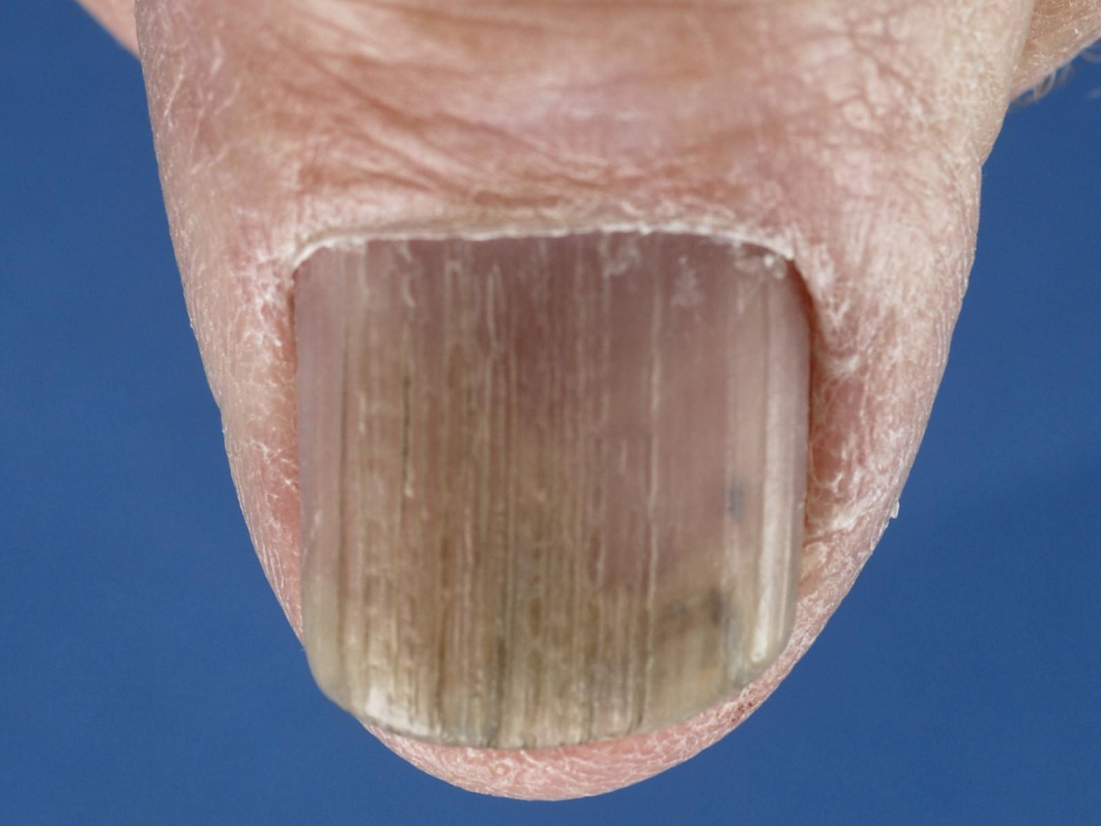 schilferende nagels