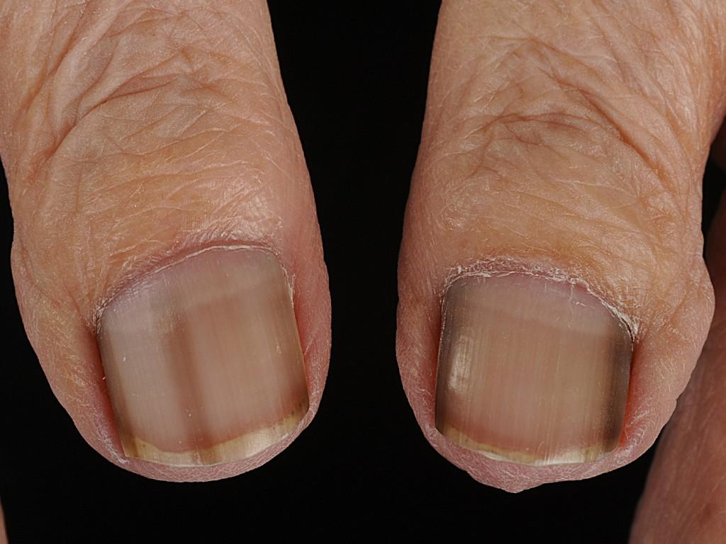 Subunguaal melanoom (acrolentigineus melanoom onder de nagel)