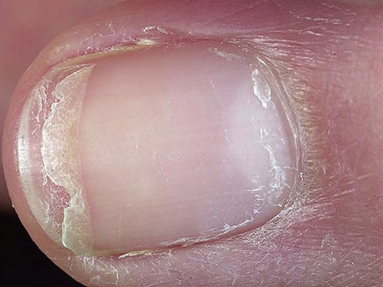 lichen nitidus behandlung