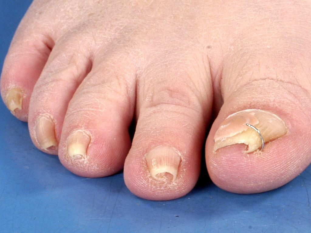 Pincer nail (pincet nagel, buis nagel)